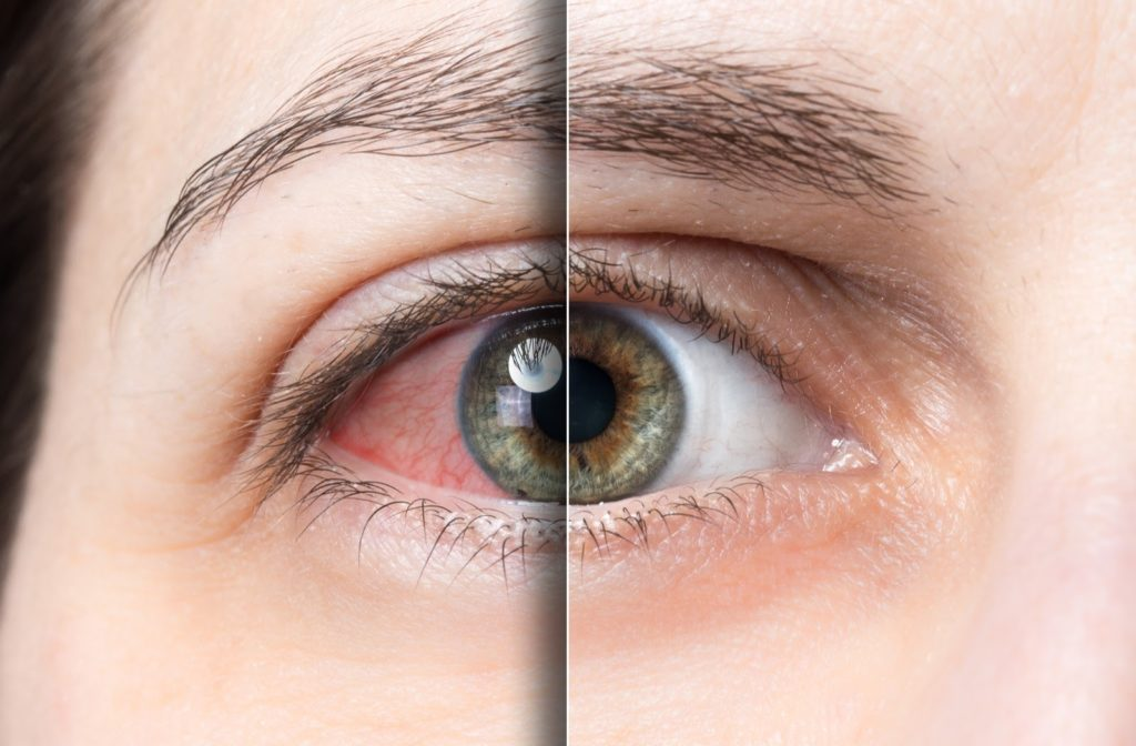 Split-screen closeup of a human eye that is red dry and looking irritated on the left and clear with moisture on the right